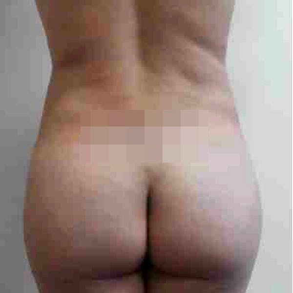Flank-Lower Back Liposuction Gallery - Patient 3719130 - Image 2