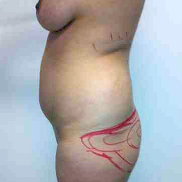 Flank-Lower Back Liposuction Gallery - Patient 3719130 - Image 3