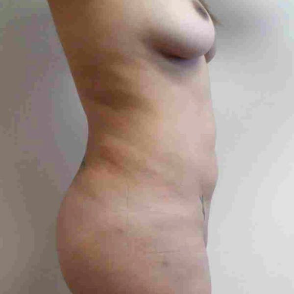 Flank-Lower Back Liposuction Gallery - Patient 3719130 - Image 6