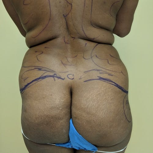 Flank-Lower Back Liposuction Gallery - Patient 3719147 - Image 1