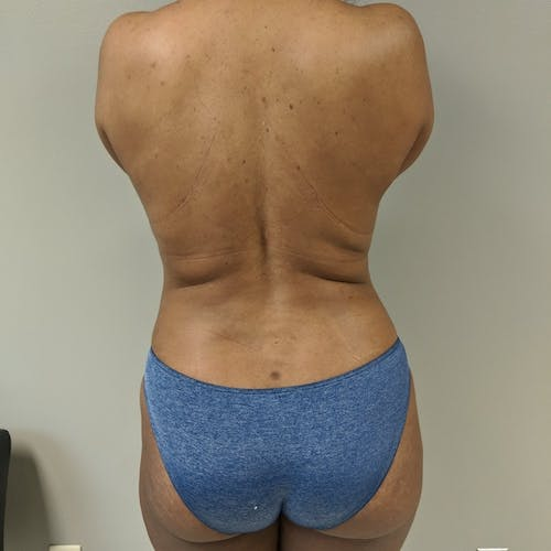 Flank-Lower Back Liposuction Gallery - Patient 3719147 - Image 2