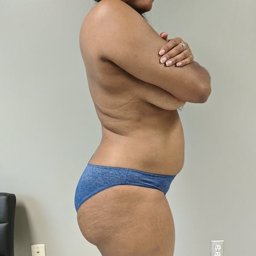 Flank-Lower Back Liposuction Gallery - Patient 3719147 - Image 4