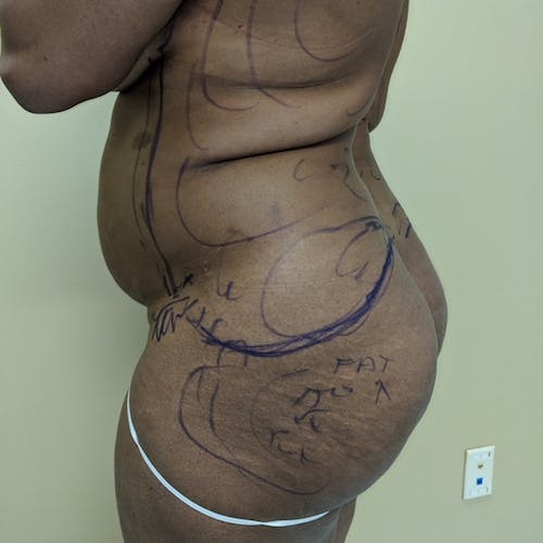 Flank-Lower Back Liposuction Gallery - Patient 3719147 - Image 5