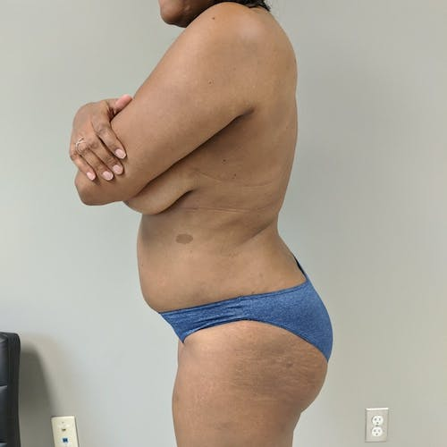 Flank-Lower Back Liposuction Gallery - Patient 3719147 - Image 6