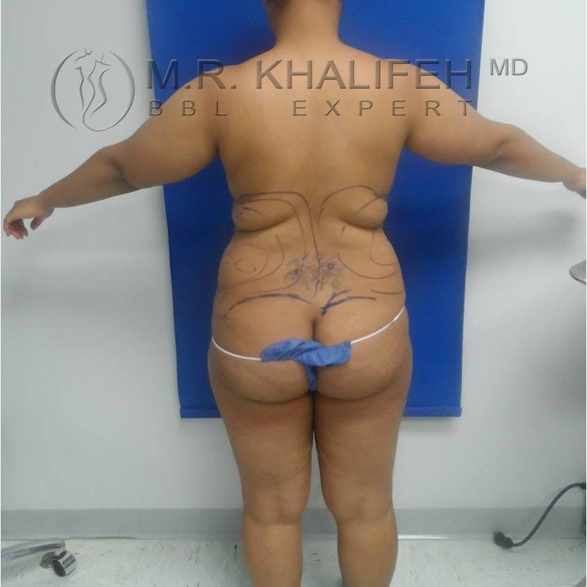 Flank-Lower Back Liposuction Gallery - Patient 3719190 - Image 1