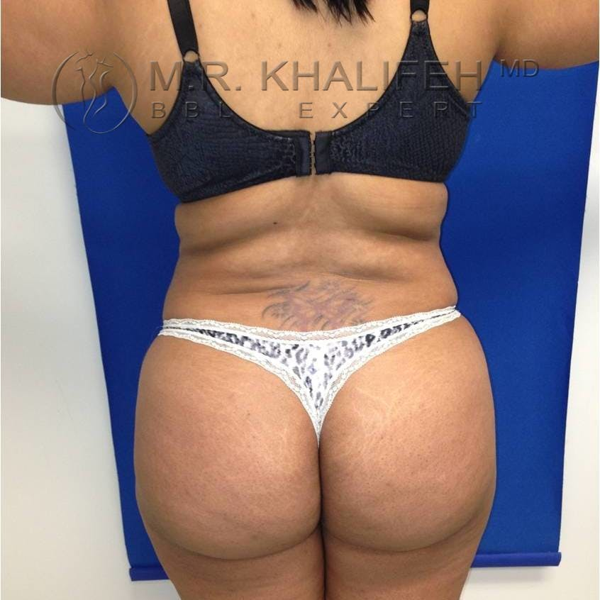 Flank-Lower Back Liposuction Gallery - Patient 3719190 - Image 2
