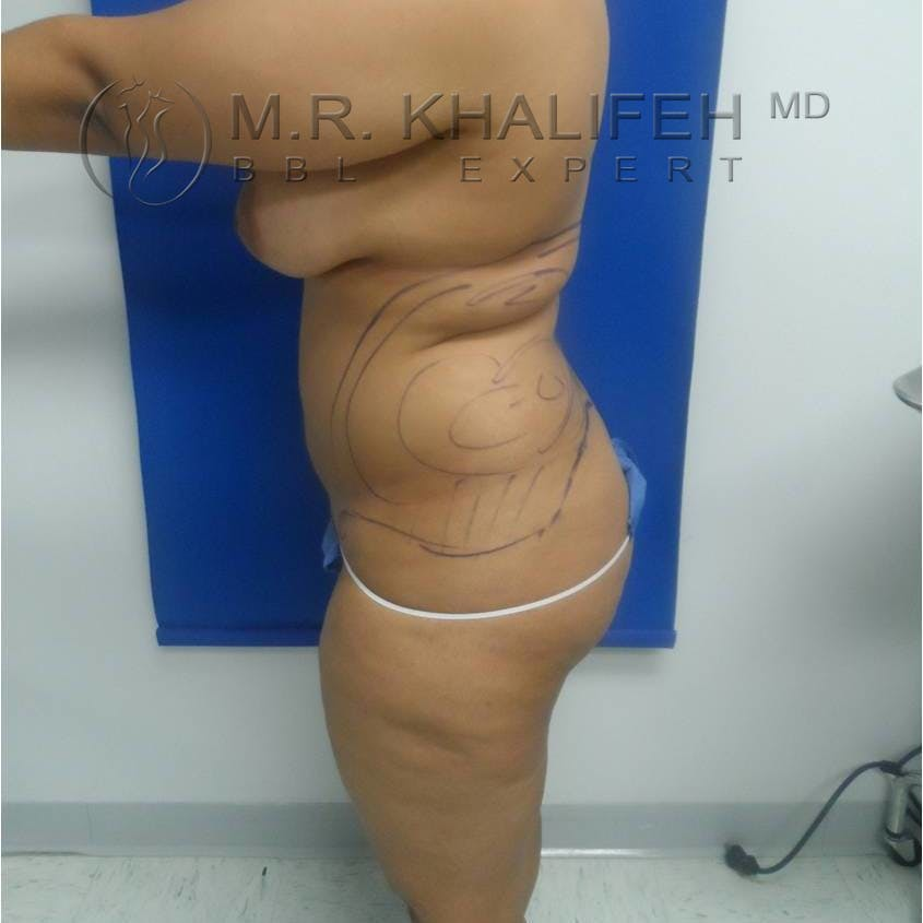 Flank-Lower Back Liposuction Gallery - Patient 3719190 - Image 3