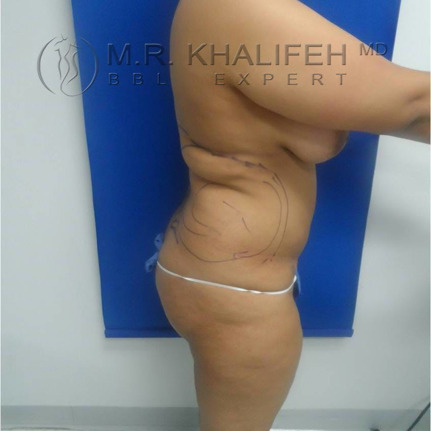 Flank-Lower Back Liposuction Gallery - Patient 3719190 - Image 5