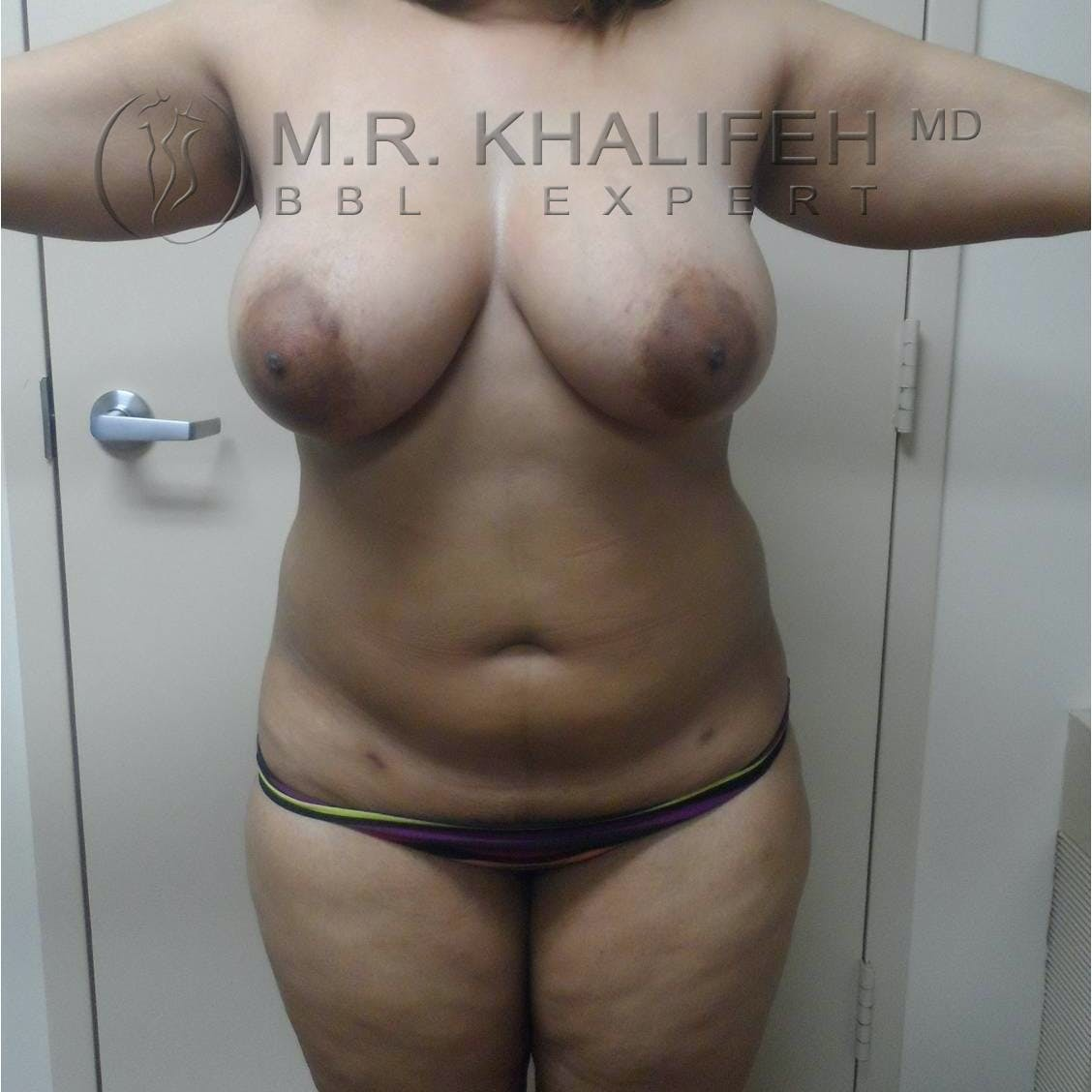 Flank-Lower Back Liposuction Gallery - Patient 3719190 - Image 7