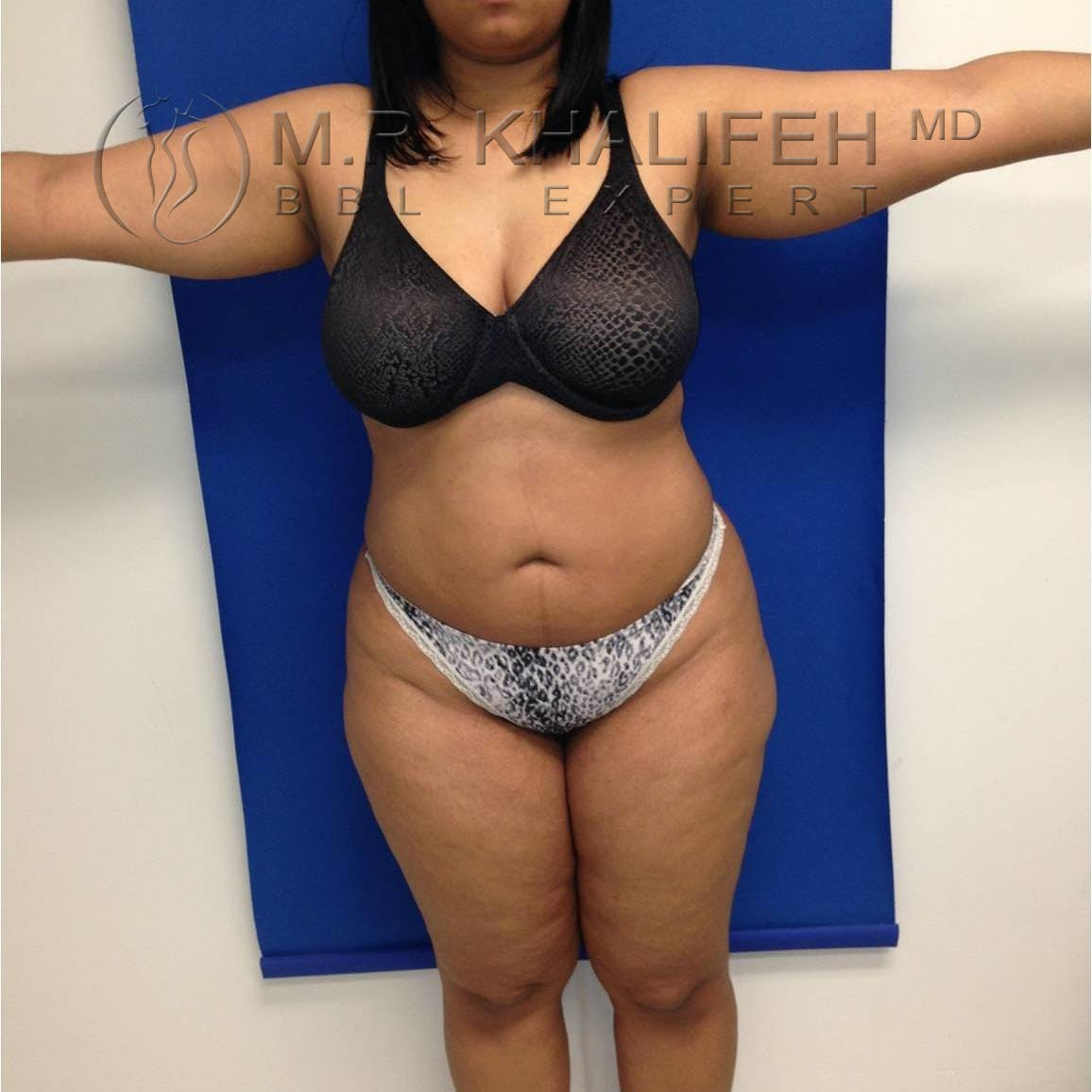 Flank-Lower Back Liposuction Gallery - Patient 3719190 - Image 8