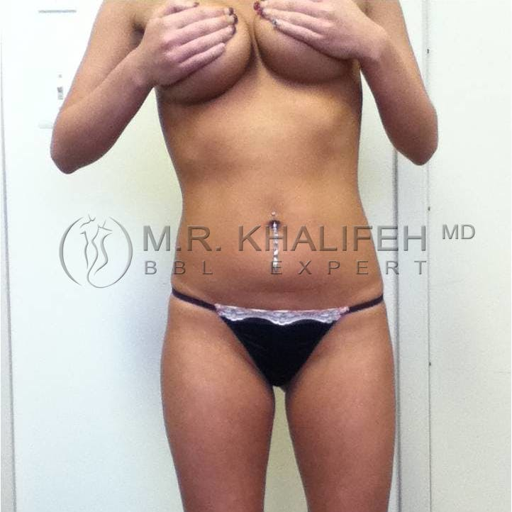 Flank-Lower Back Liposuction Gallery - Patient 3719272 - Image 1