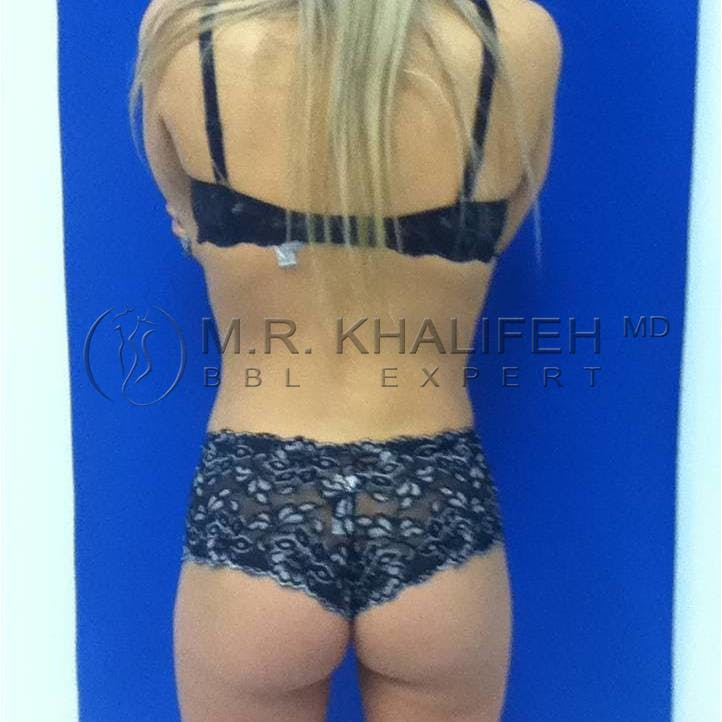 Flank-Lower Back Liposuction Gallery - Patient 3719272 - Image 4