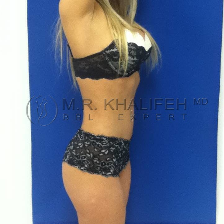 Flank-Lower Back Liposuction Gallery - Patient 3719272 - Image 8