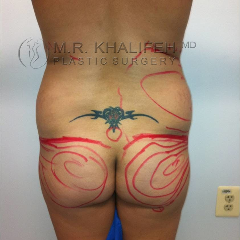 Flank-Lower Back Liposuction Gallery - Patient 3719308 - Image 1