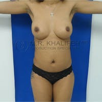 Flank-Lower Back Liposuction Gallery - Patient 3719350 - Image 1