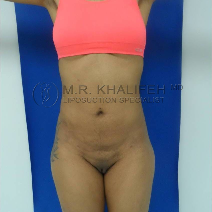 Flank-Lower Back Liposuction Gallery - Patient 3719350 - Image 2