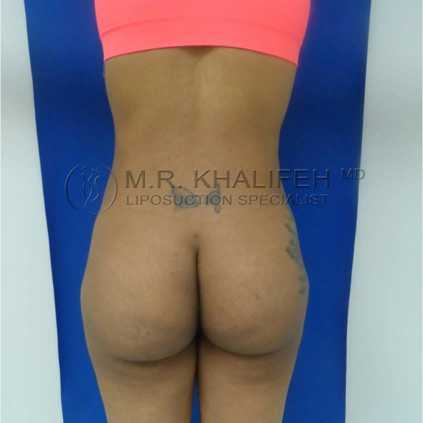 Flank-Lower Back Liposuction Gallery - Patient 3719350 - Image 4