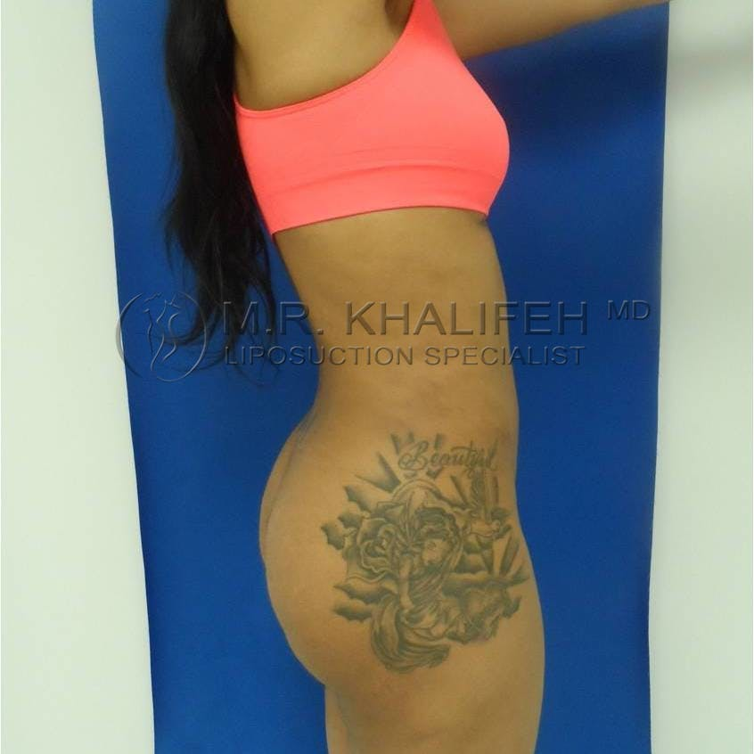 Flank-Lower Back Liposuction Gallery - Patient 3719350 - Image 6