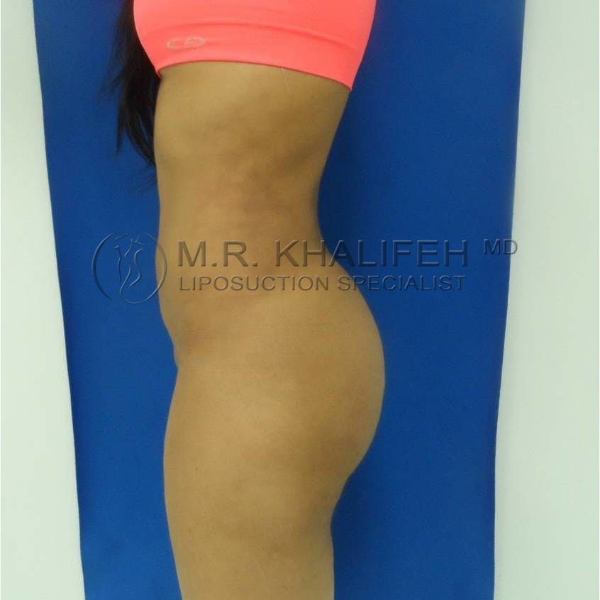 Flank-Lower Back Liposuction Gallery - Patient 3719350 - Image 8