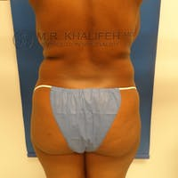 Flank-Lower Back Liposuction Gallery - Patient 3719434 - Image 1