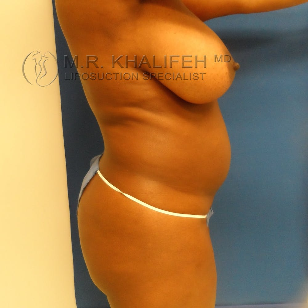 Flank-Lower Back Liposuction Gallery - Patient 3719434 - Image 7