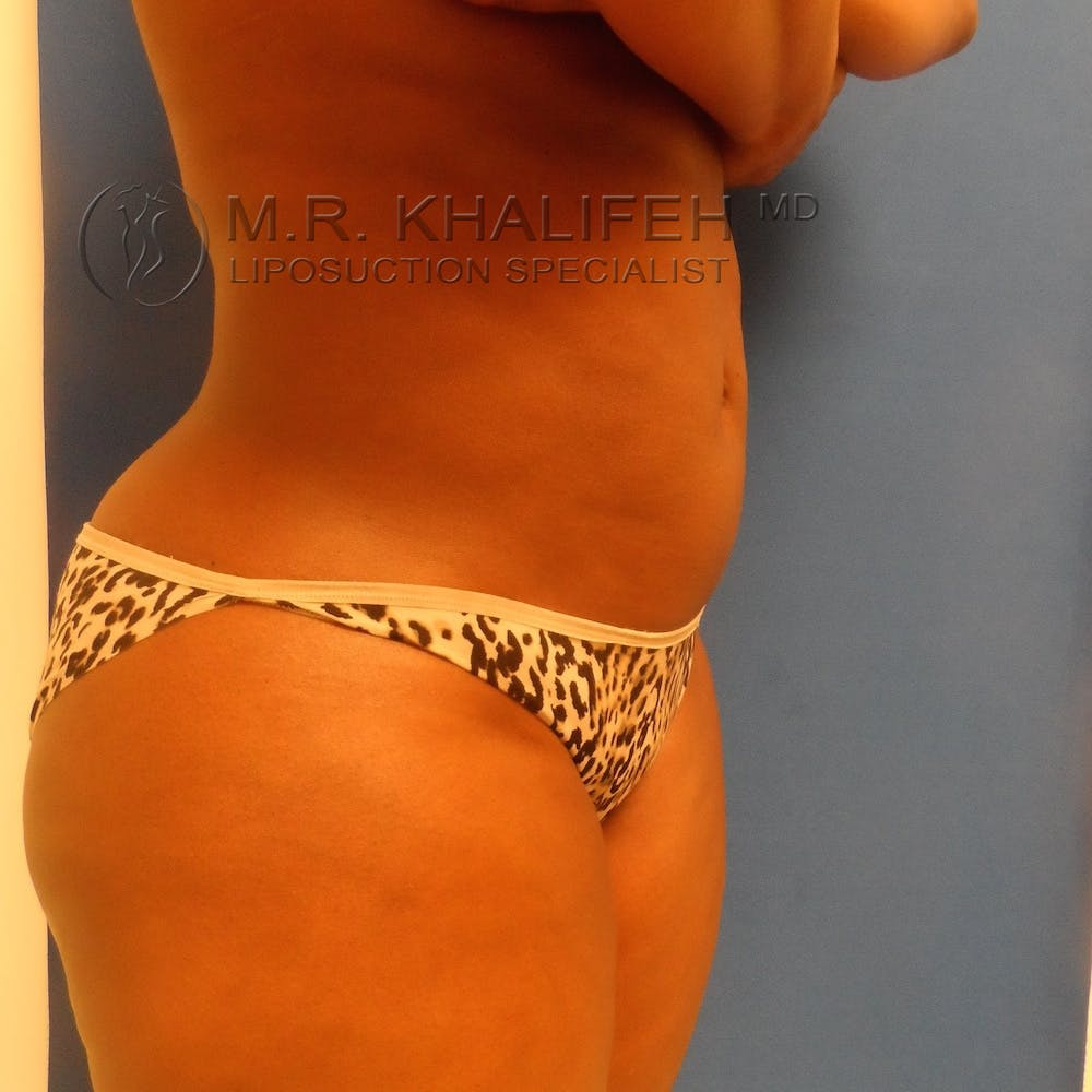 Flank-Lower Back Liposuction Gallery - Patient 3719434 - Image 8