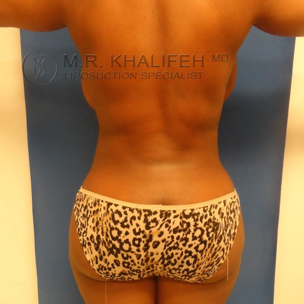 Flank-Lower Back Liposuction Gallery - Patient 3719434 - Image 10