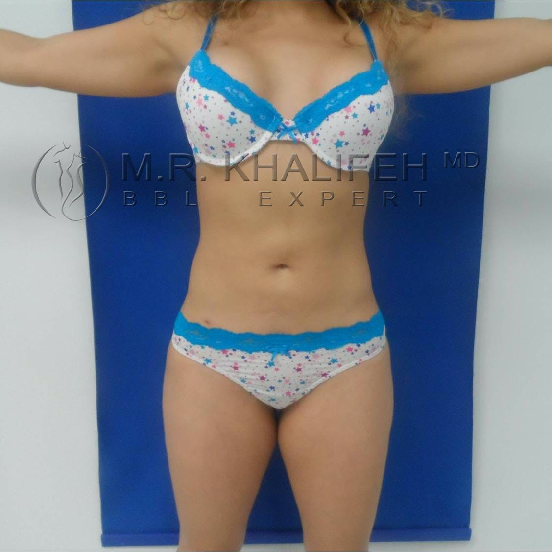 Flank-Lower Back Liposuction Gallery - Patient 3719503 - Image 2