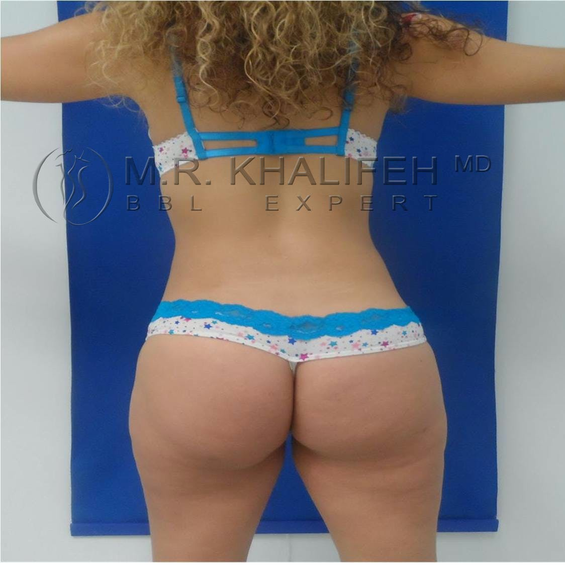 Flank-Lower Back Liposuction Gallery - Patient 3719503 - Image 4