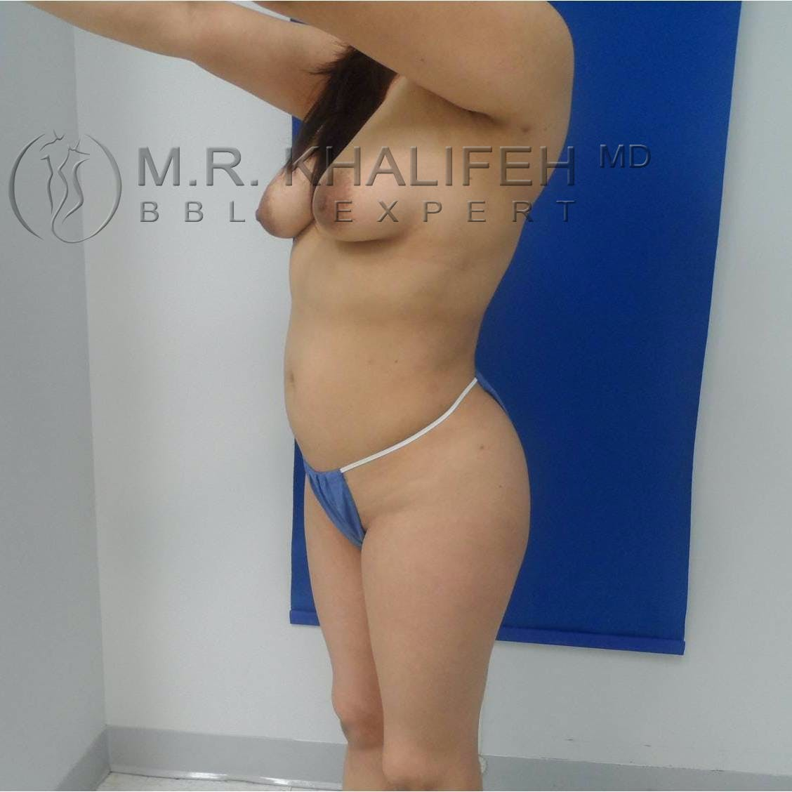 Flank-Lower Back Liposuction Gallery - Patient 3719561 - Image 8