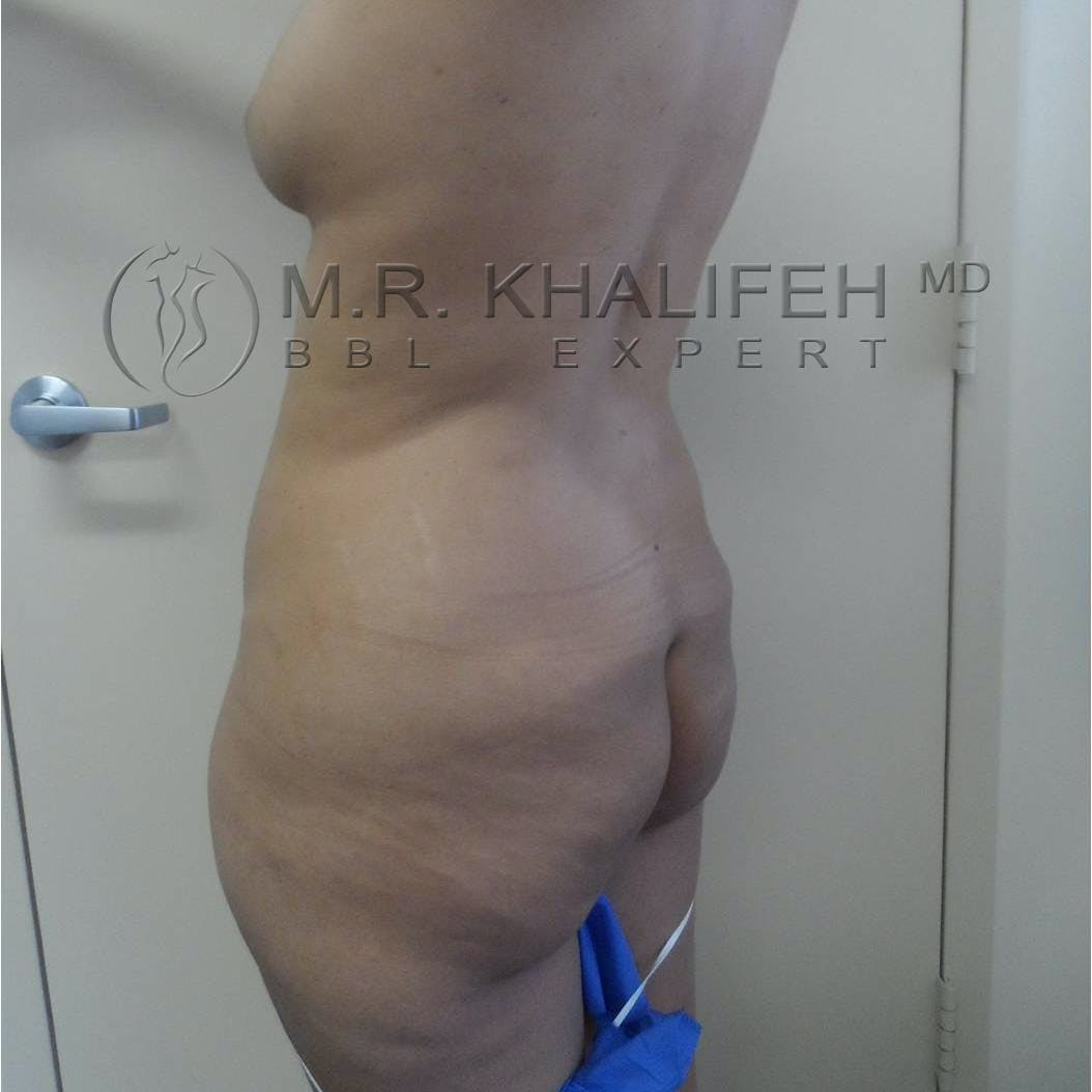 Flank-Lower Back Liposuction Gallery - Patient 3719610 - Image 1