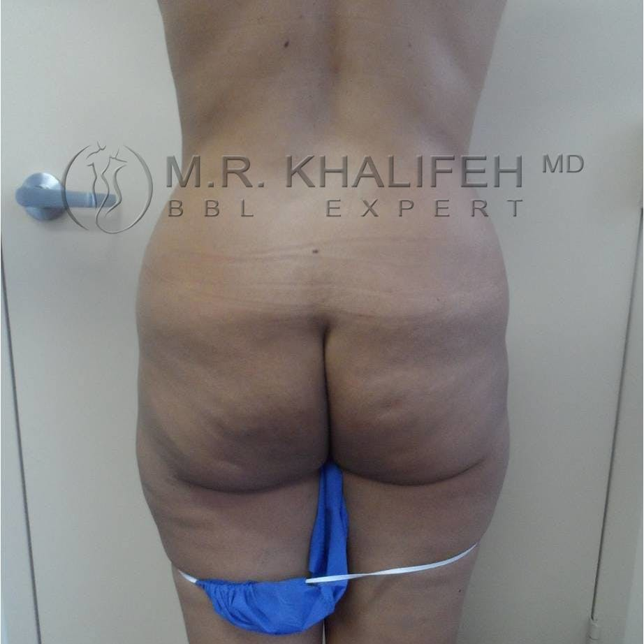 Flank-Lower Back Liposuction Gallery - Patient 3719610 - Image 3