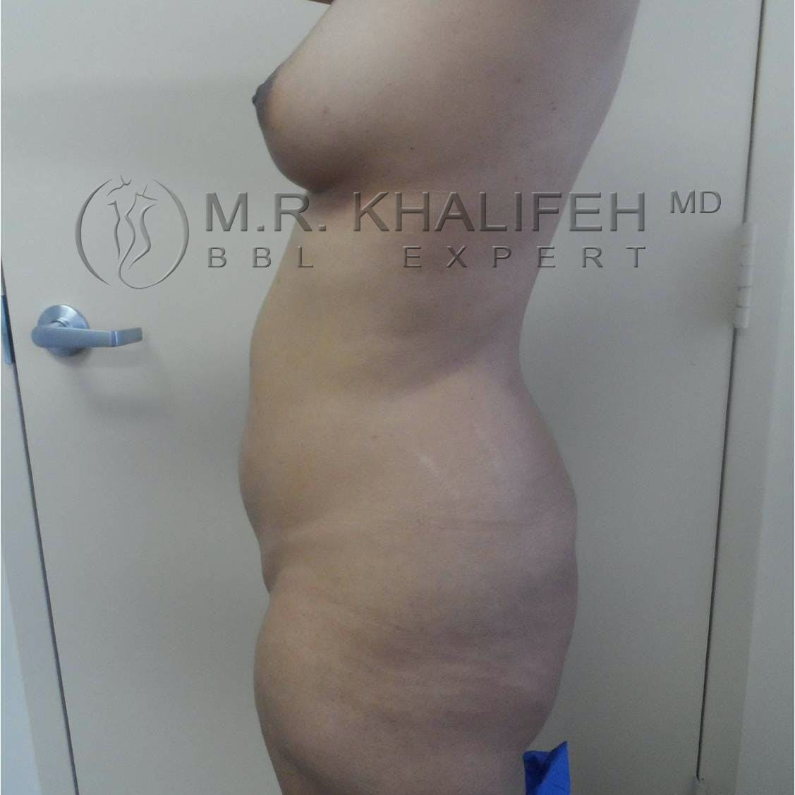 Flank-Lower Back Liposuction Gallery - Patient 3719610 - Image 5