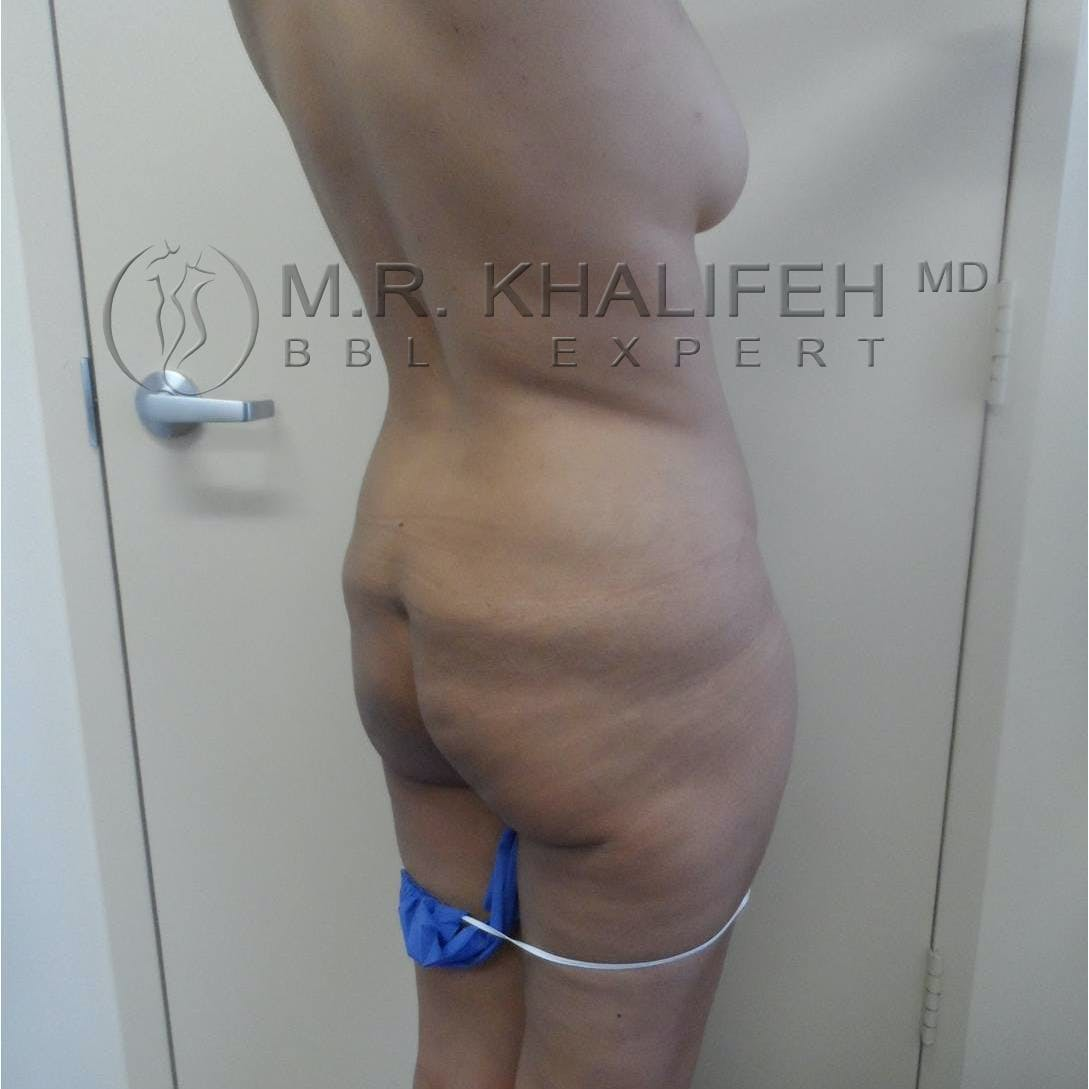 Flank-Lower Back Liposuction Gallery - Patient 3719610 - Image 7