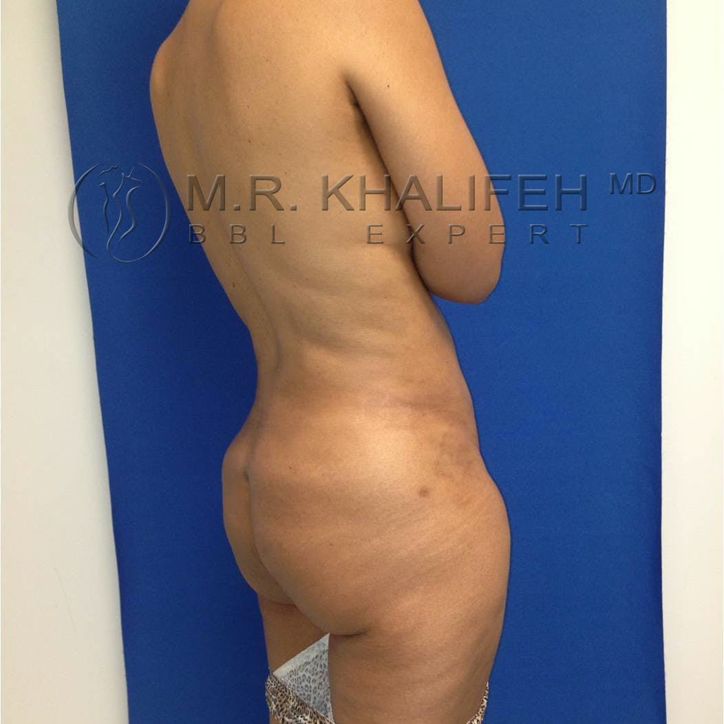 Flank-Lower Back Liposuction Gallery - Patient 3719610 - Image 8