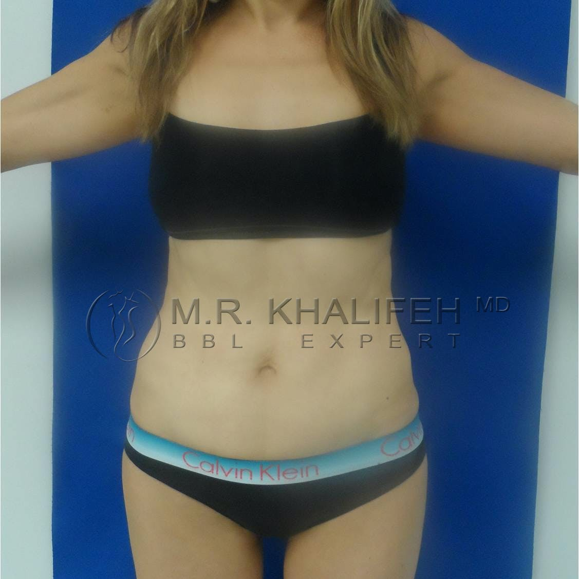 Flank-Lower Back Liposuction Gallery - Patient 3719676 - Image 2