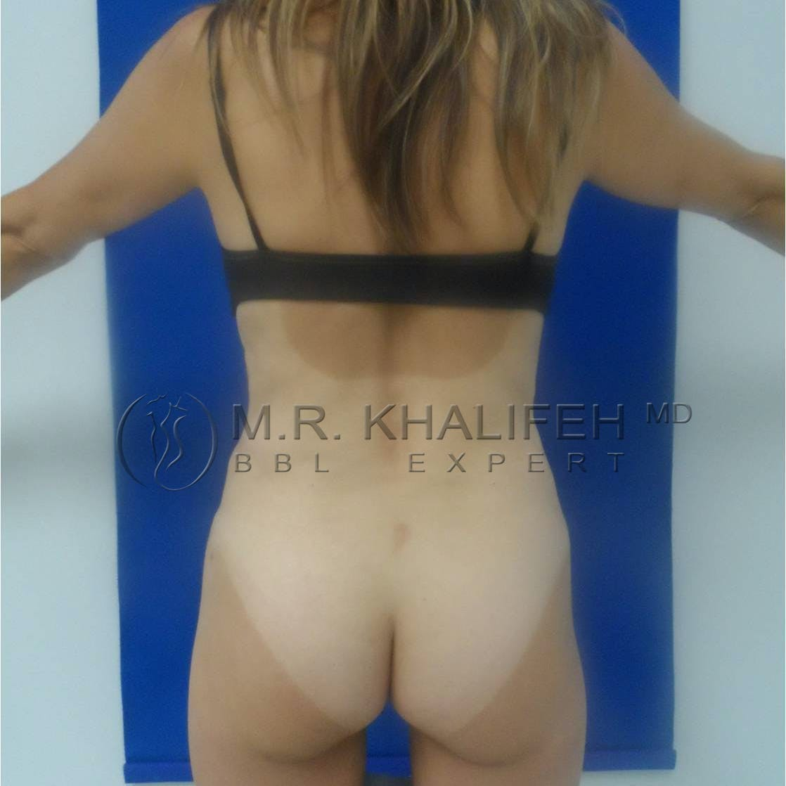Flank-Lower Back Liposuction Gallery - Patient 3719676 - Image 4