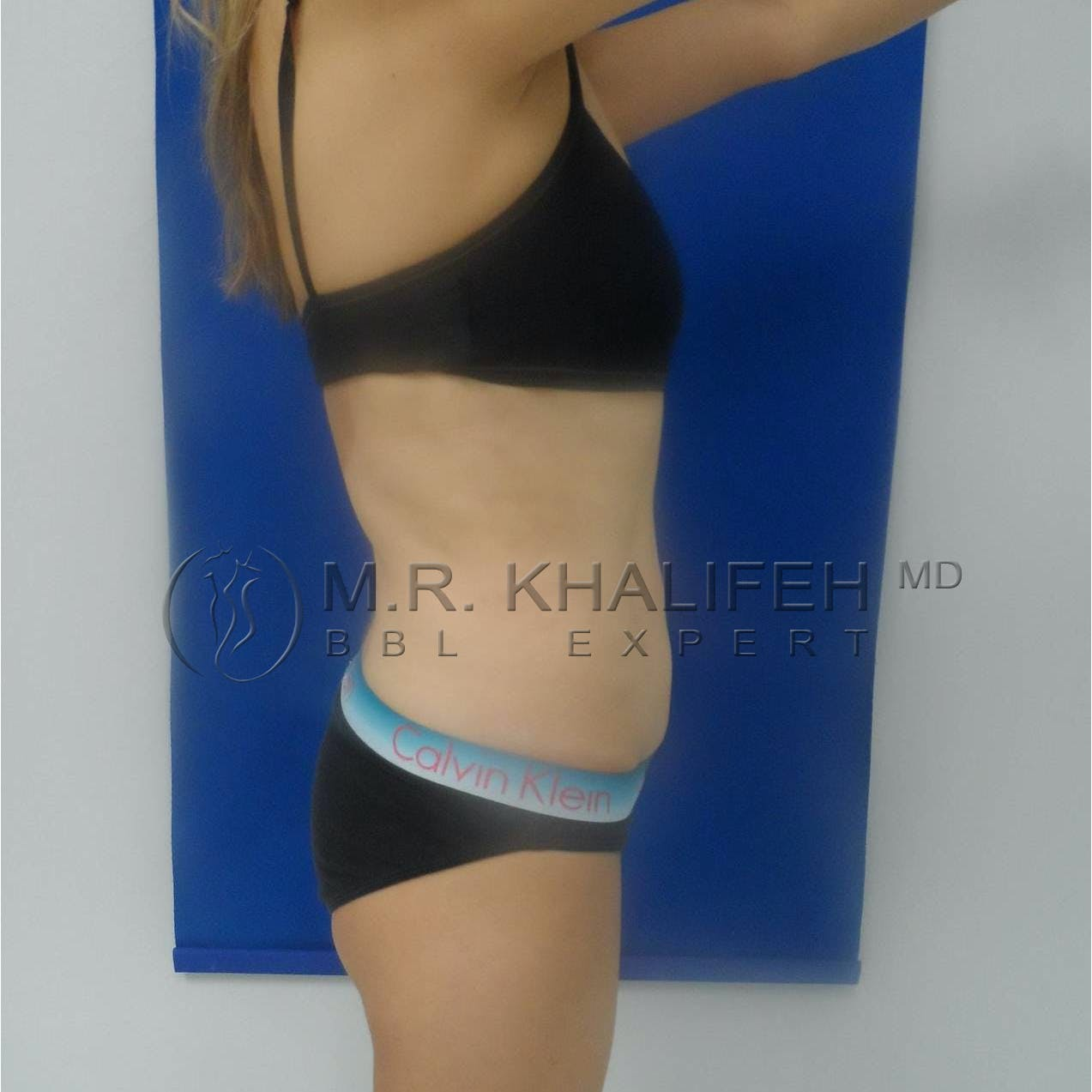 Flank-Lower Back Liposuction Gallery - Patient 3719676 - Image 6