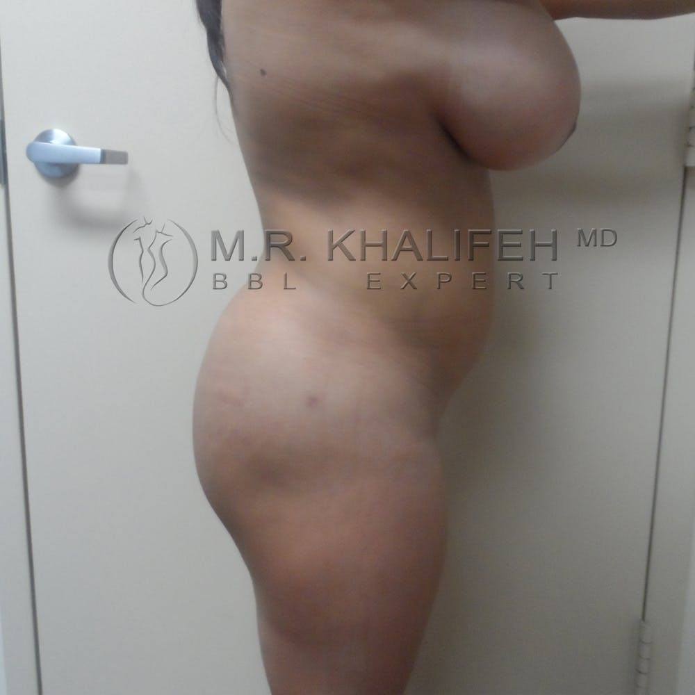 Flank-Lower Back Liposuction Gallery - Patient 3719722 - Image 6