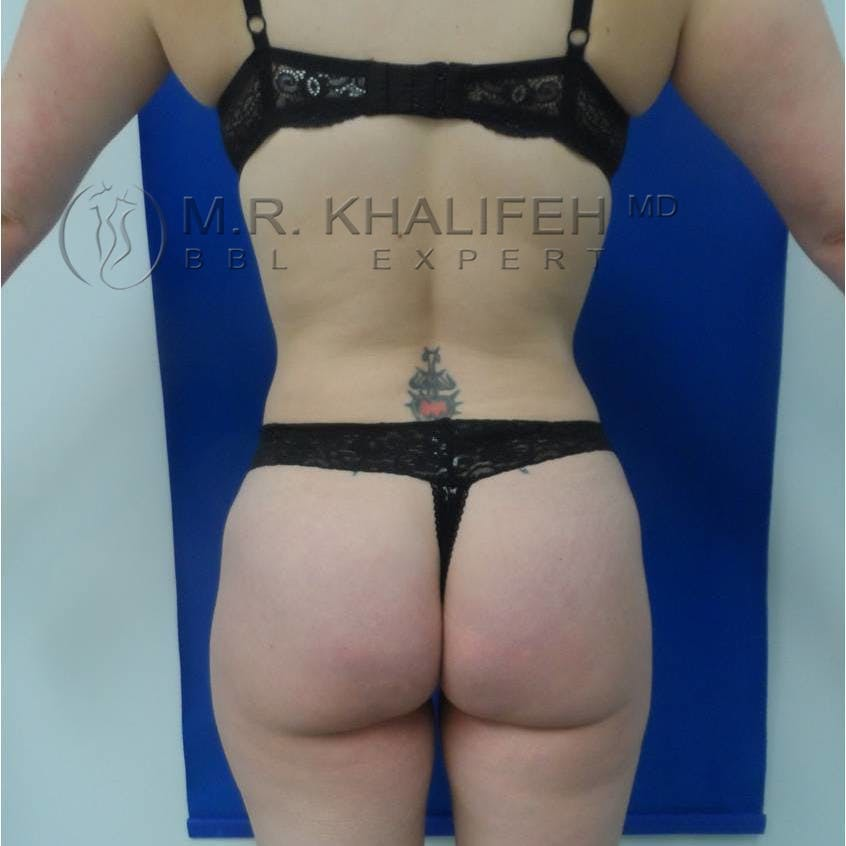 Flank-Lower Back Liposuction Gallery - Patient 3719773 - Image 4