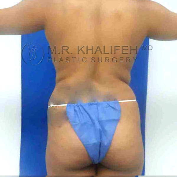 Flank-Lower Back Liposuction Gallery - Patient 3719827 - Image 1