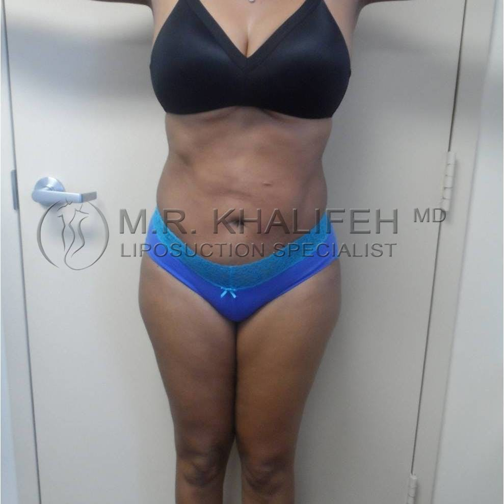 Flank-Lower Back Liposuction Gallery - Patient 3719882 - Image 2