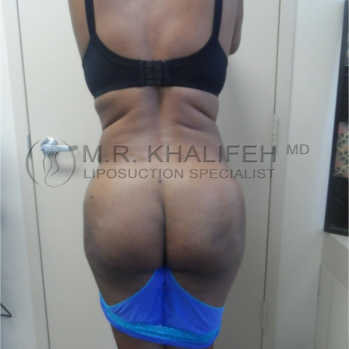 Flank-Lower Back Liposuction Gallery - Patient 3719882 - Image 4