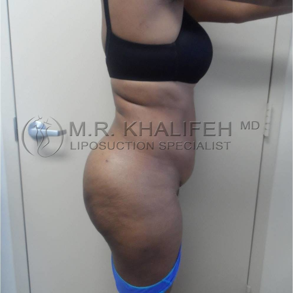 Flank-Lower Back Liposuction Gallery - Patient 3719882 - Image 10