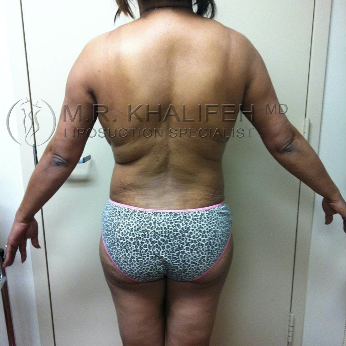 Flank-Lower Back Liposuction Gallery - Patient 3719930 - Image 2