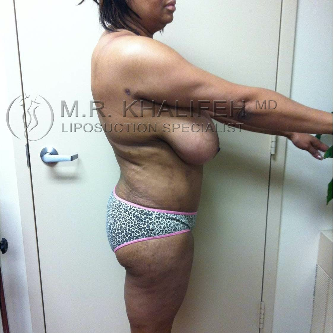 Flank-Lower Back Liposuction Gallery - Patient 3719930 - Image 8