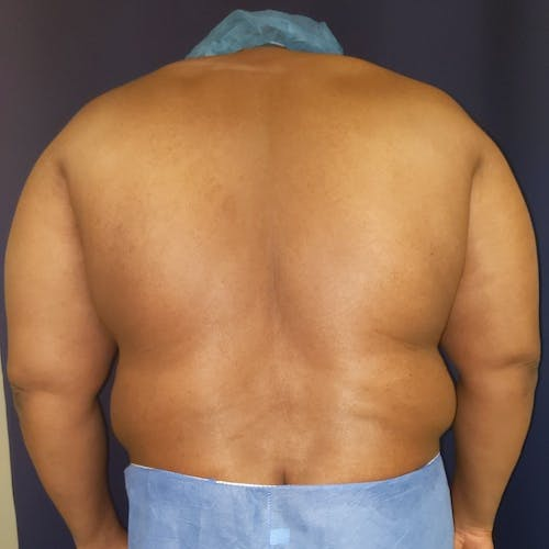 Flank-Lower Back Liposuction Gallery - Patient 3719960 - Image 1