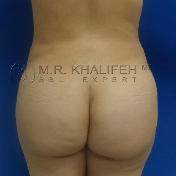 Flank-Lower Back Liposuction Gallery - Patient 3720010 - Image 2