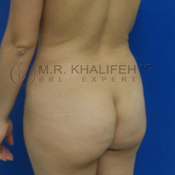 Flank-Lower Back Liposuction Gallery - Patient 3720010 - Image 3