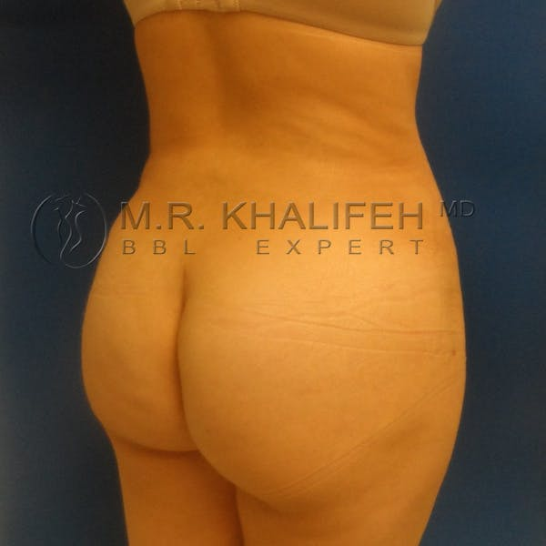 Flank-Lower Back Liposuction Gallery - Patient 3720010 - Image 4